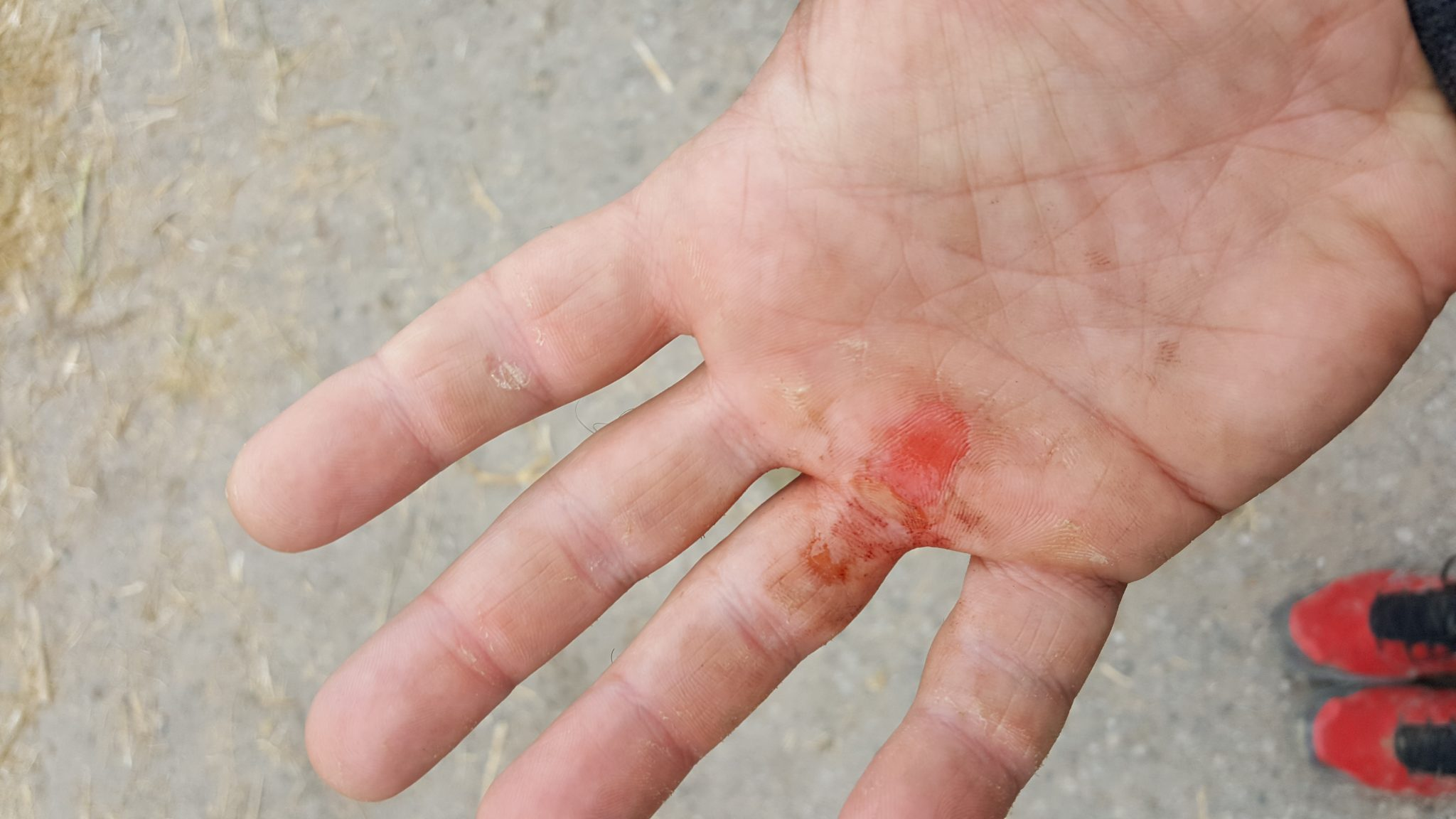 How to treat calluses