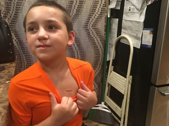 Berkeley 12-year-old leukemia survivor: Doctor's note needed to sit out phys ed