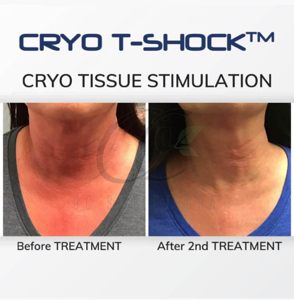 Cryo T Shock Tissue Stimulation for Poikilderma of civatte permanent sunburn