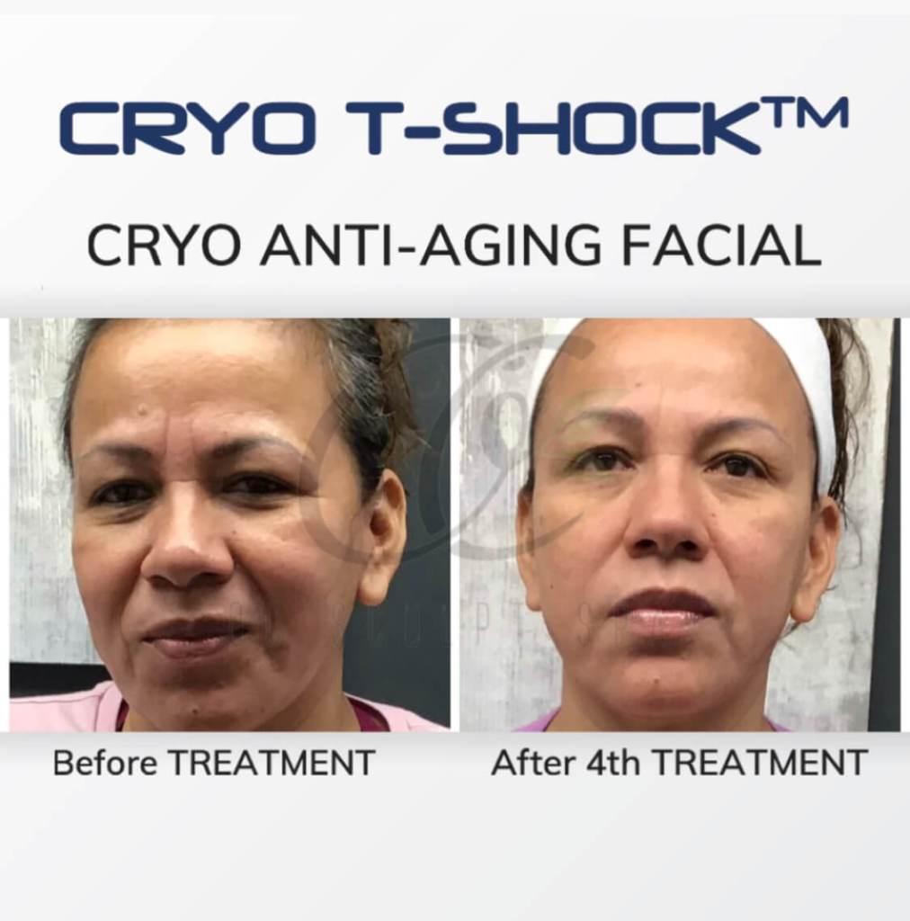 Cryo T Shock Anti Aging Facial for Collagen Rejuvenation
