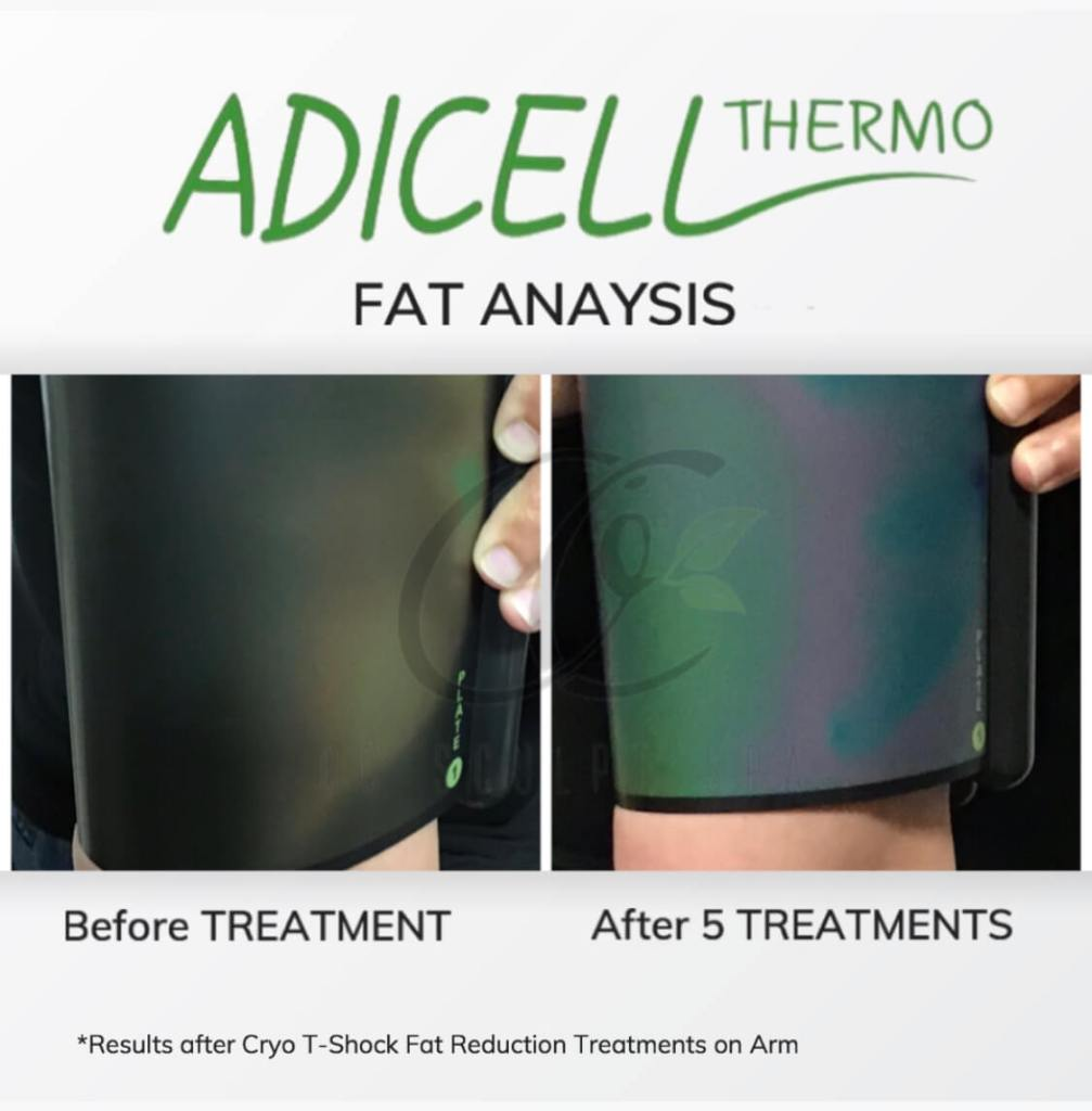 Adicell Results Measuring Fat Content and Type After Cryo T Shock Fat Reduction Arms