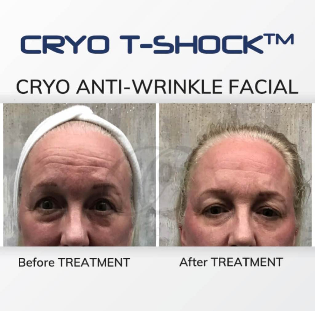 Cryo T Shock Anti Wrinkle Treatment for Forehead lines