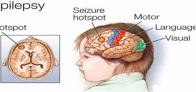 Demystify epilepsy