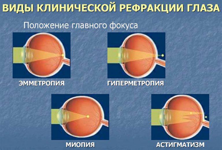 Viziune de refracție. Fresh articles