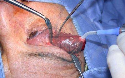 3. intraoperatorio