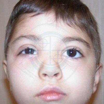 Paralisi del faciale nel Bambino. foto 3 - post