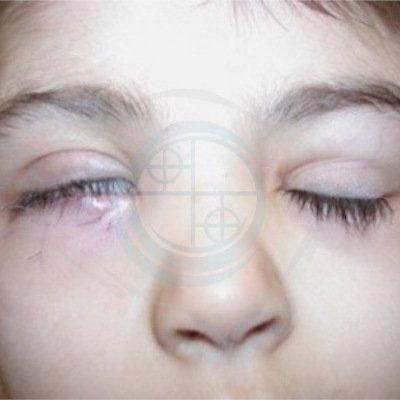 Paralisi del faciale nel Bambino. foto 4 - post