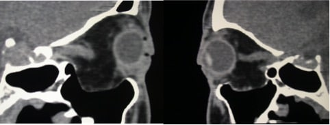 tac orbitopatia tiroidea