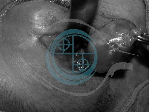 Tumori dell'Orbita 16