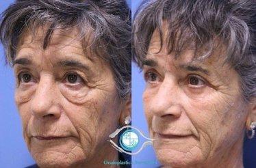 lower blepharoplasty 231219 francesco bernardini 2