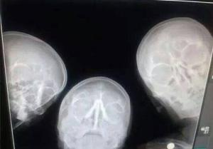 When radiologists take a selfie