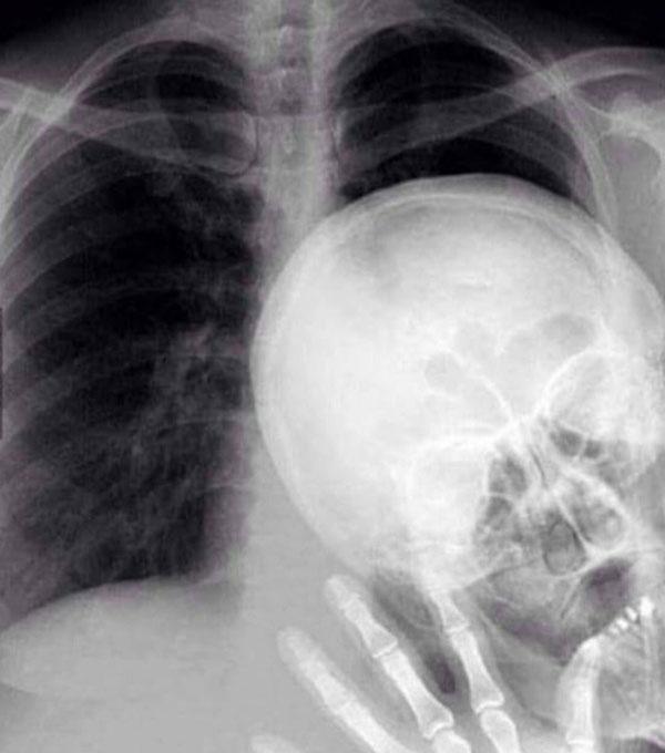 X-ray photo bomb