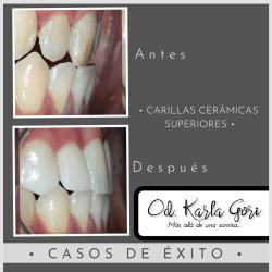 Espacio dental consultorio odontológico Karla Gori Bogotá Colombia Carillas cerámicas