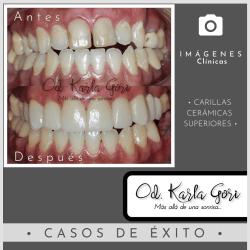 Espacio dental consultorio odontológico Karla Gori Bogotá Colombia carillas cerámicas superiores
