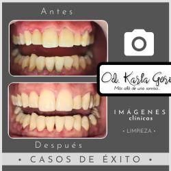 Limpieza dental en Bogota Cedritos