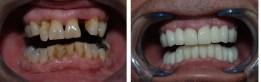 puente dental fijo tipos puente Colombia