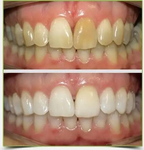 diseño de sonrisa caso antes despues blanqueamiento dientes