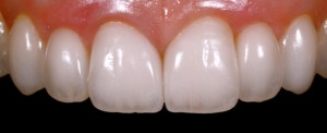 diseño-de-sonrisa estetica dental, odontología estética