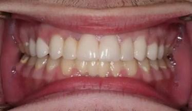odontologia medellin consultorio odontologico medellin