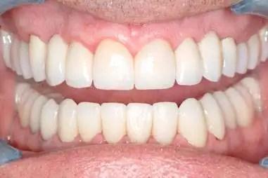 coronas dentales porcelana antes y después