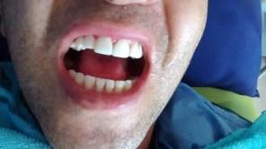 Implante dental y corona zirconio