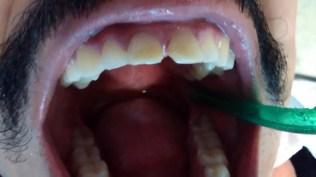 Carillas dentales porcelana antes