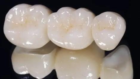 protesis dental fija porcelana