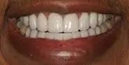 coronas dentales en porcelana sin metal meddellin