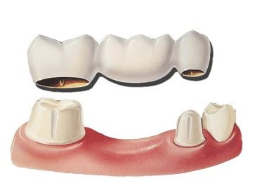 Puente dental porcelana prótesis fija medellin