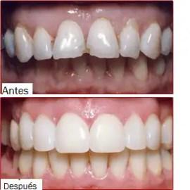 odontologia estetica Medellin antes despues