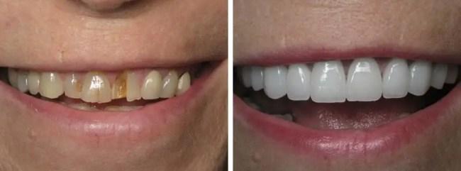 diseño de sonrisa Medellin odontologia