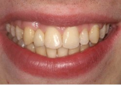 opcion puente dental economico Colombia Medellin