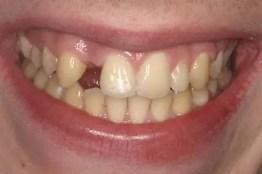 opciones de puente dental fijo