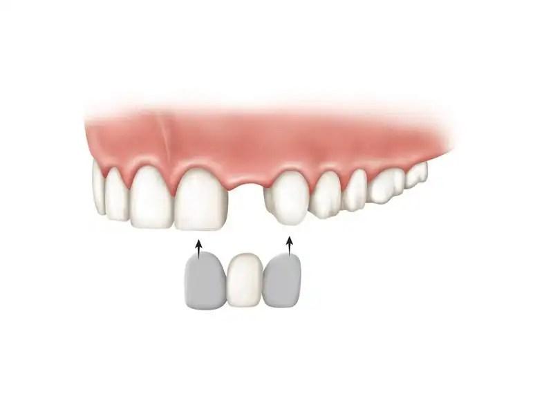 puende dental economico porcelana