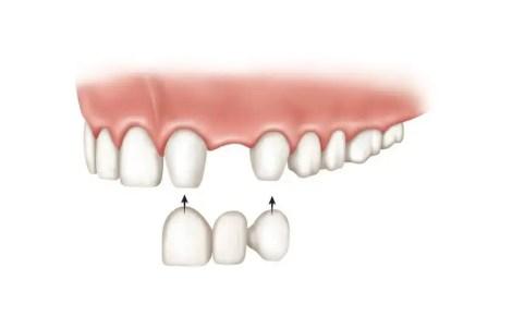 Puente dental fijo porcelana