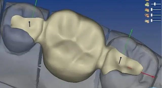 Protesis dental puente dental economico Colombia Medellin