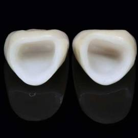 Corona dental circonio porcelana