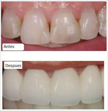 Carillas dentales circonio Medellin después
