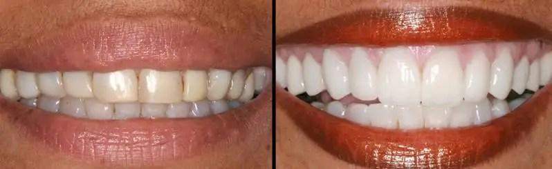 Corona dental zirconio estetica dental
