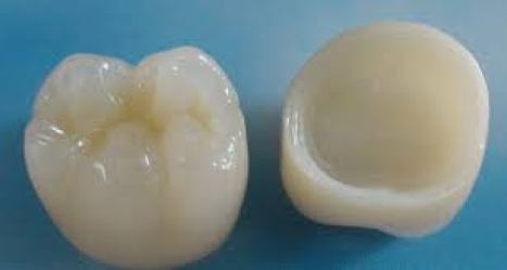 Corona dental circonio porcelana Medellin Colombia