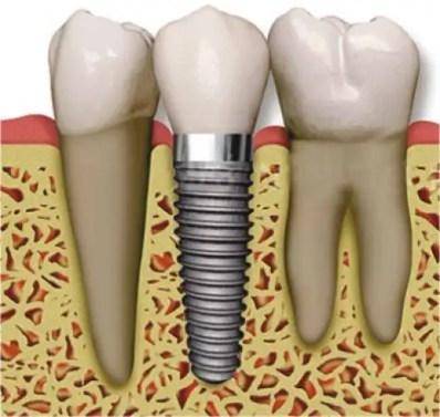 Implantes-dentales-Medellin