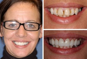 odontologia medellin- diseno-de-sonrisa-antes-despues