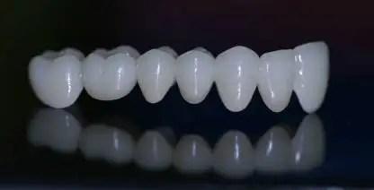 puente-dental-zirconio-colombia
