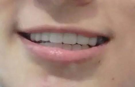 Coronas-dentales-en-zirconio-caso