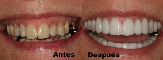 Carillas dentales Medellin precio antes después