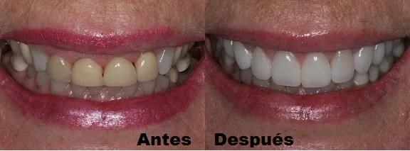 Carillas dentales antes - después Medellin