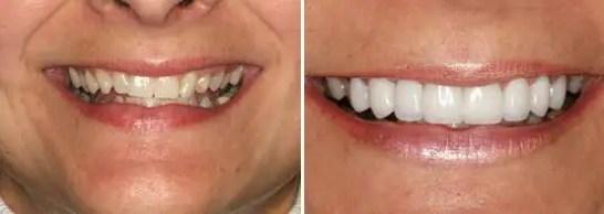 Carillas dentales porcelana Emax