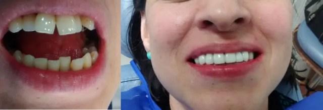 Enderezar los dientes sin ortodoncia antes después
