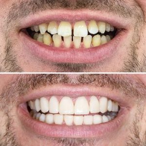 Diseño de sonrisa antes después Medellín