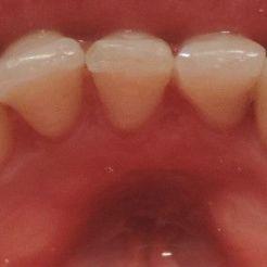 Corrección de posición dentaria DESPUÉS